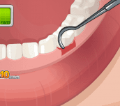 Hra - Operate Now Dental Implant