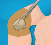 Hra - Operate Now Knee Surgery
